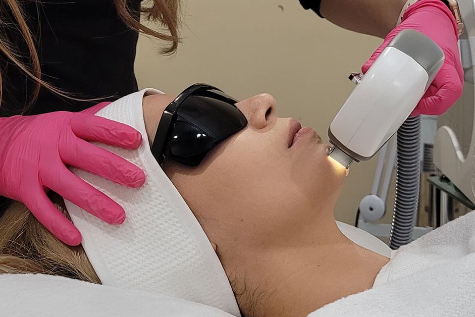 curso de laser corporal y facial de glam perception en miramar florida
