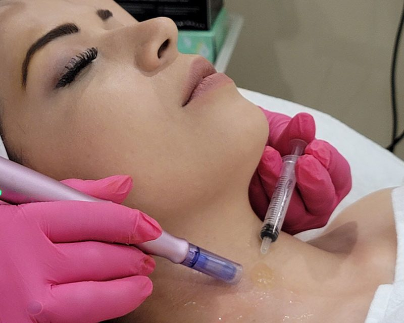 curso de microagujas dermapen facial y corporal de glam perception en miramar florida