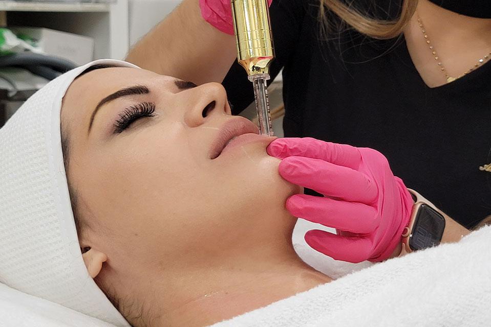 curso de hyaluron pen para labios y arrugas de glam perception en miramar fl