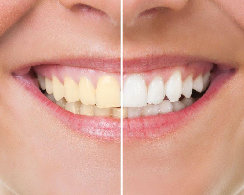 curso de blanqueamiento dental de glam perception en miramar florida