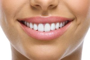 ventajas y desventajas del blanqueamiento dental glam perception en miramar florida